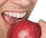 Zahnzusatzversicherungen: Genau vergleichen, große Unterschiede